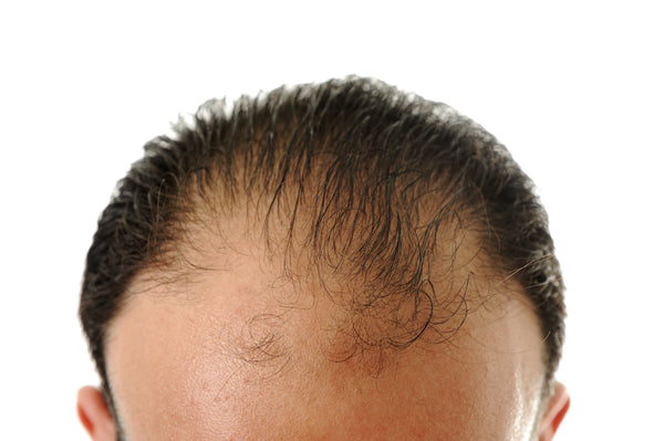 Causes of hair loss in man