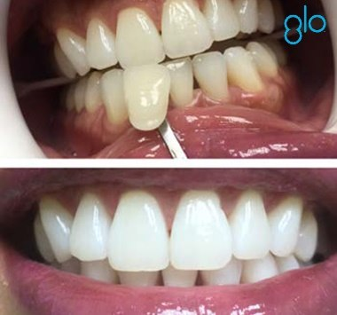 Top 5 Things That Are Making Your Patients' Teeth Yellow…And What To Do About It!