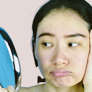 3 REASONS WHY YOUR SKIN IS DULL