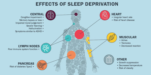 The health effects of sleep deprivation