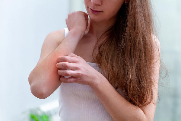 young woman with itchy skin