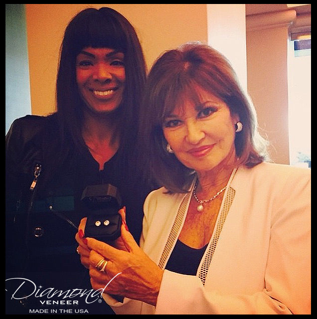 Stephanie Beacham from Dynasty on Diamond Veneer