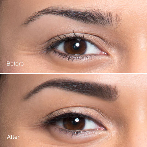 Eyebrow Lift Before and After