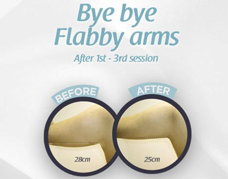 Fat Freeze Slimming Treatment
