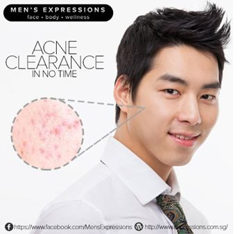 Anti-Acne Clearance