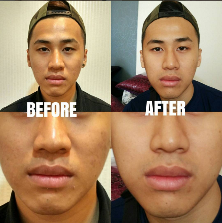 Yu Lun before and after with Expression Acne Clearance treatment