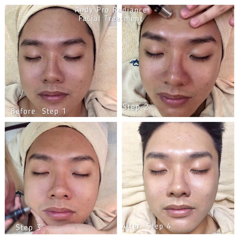 Andy before and after treatment with expressions