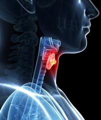 Thyroid Iodine Cancer Connection Link