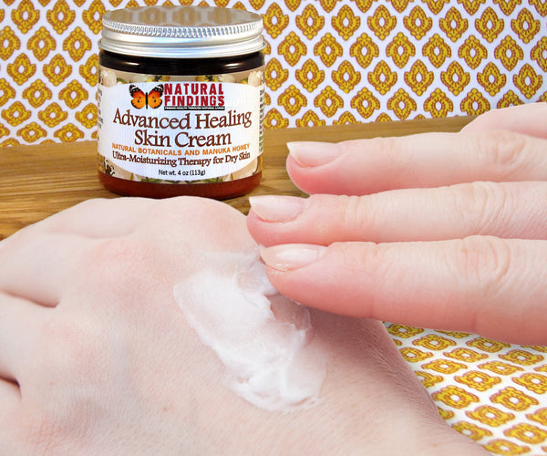 Natural Findings Advanced Healing Skin Cream - Cream on Hand