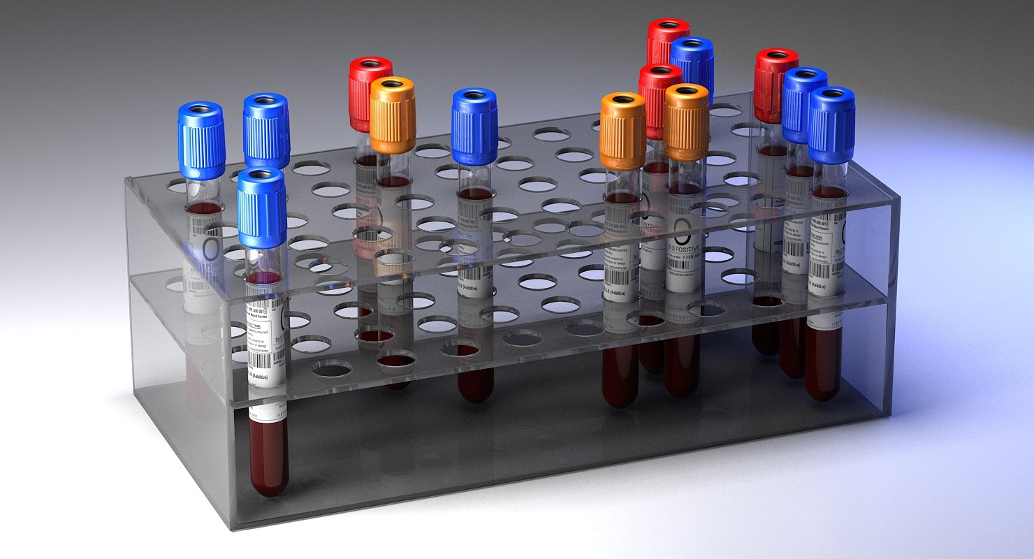 Blood Sample Rack - WireCASE