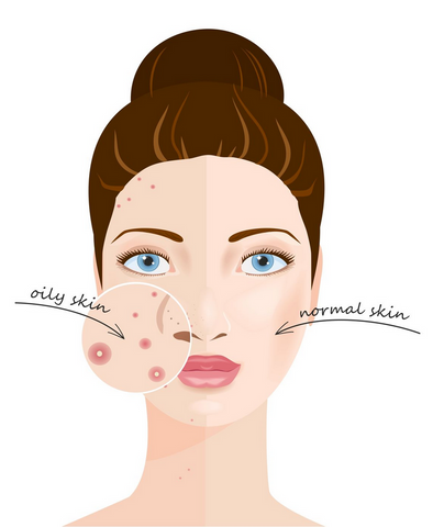 What Causes Large Pores and How Can You Fix Them? – InstaNatural