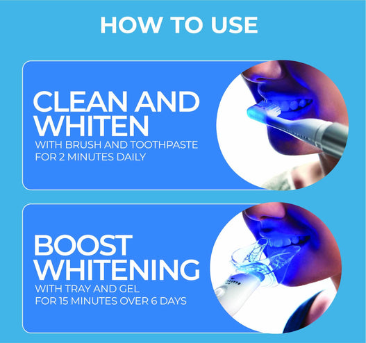 STYLSMILE Ultimate Whitening Kit