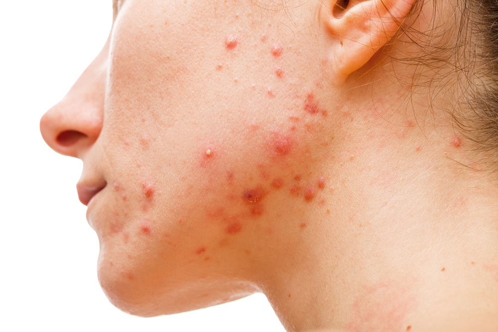Four Steps to Beat Hormonal Acne