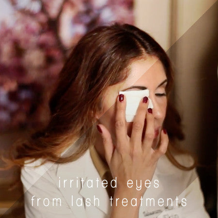 Dr. Tabasum Mir - Irritated Eyes From Lash Treatments
