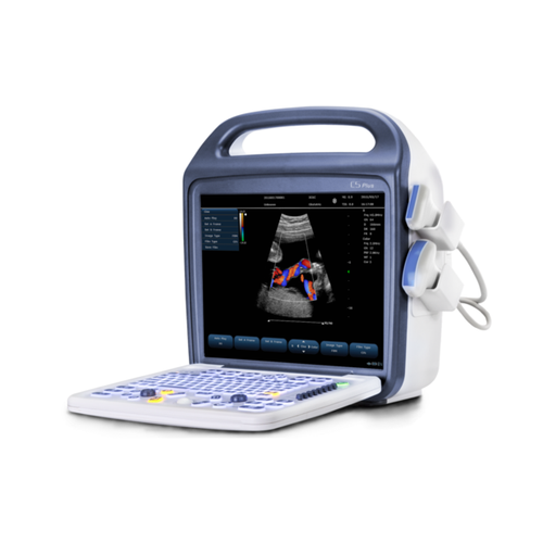 KeeboSono C5Plus - Deals on Veterinary Ultrasounds  - 1