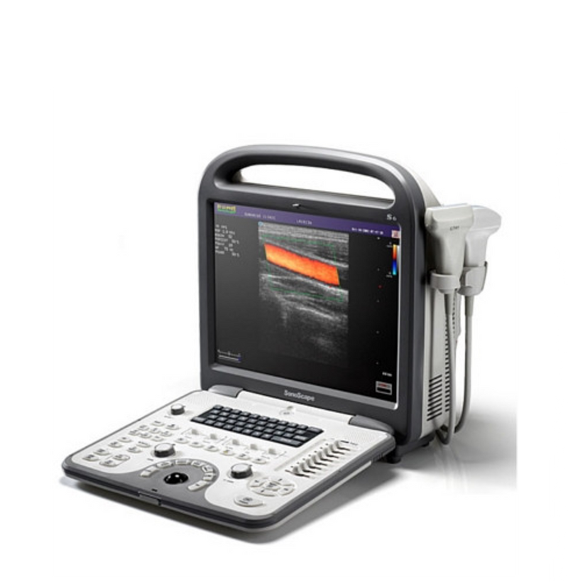 SonoScape S6V Ultrasound - Deals on Veterinary Ultrasounds  - 1