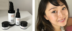 A Guest Post from Juhea: Acne Scars and Skin Discoloration