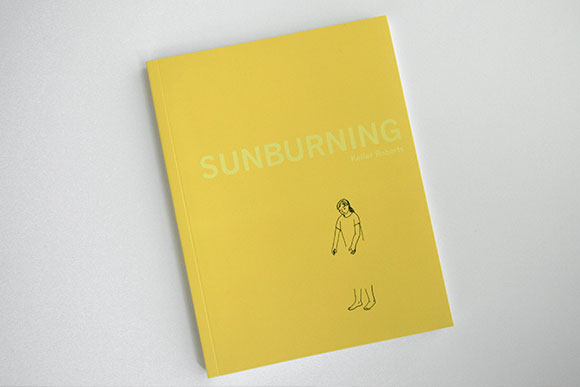 Sunburning by Keiler Roberts