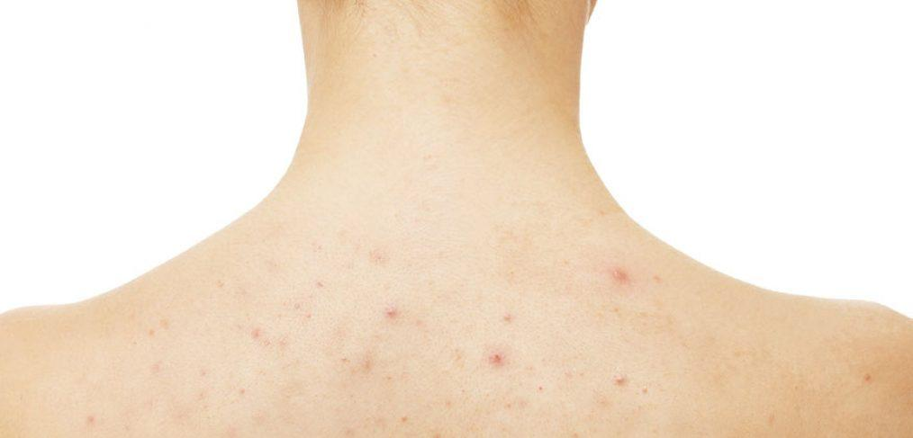 All About Body Acne How It S Different Than Face Acne And How To Treat It Cocokind