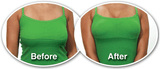 Brysttape - Nipple Covers & Bryst Tape - SelvsiddendeBHer.dk - 4