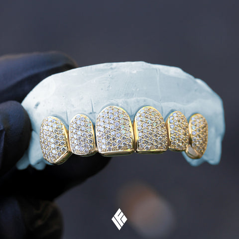 Yellow Gold Deep-Cut Upper 6 Teeth Diamond Grillz