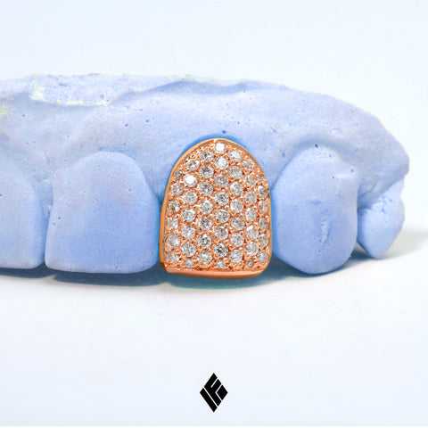 Rose Gold Diamond Grill Cap Jhene Aiko