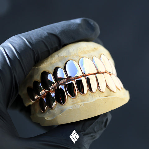 Rose Gold Upper Lower Grillz