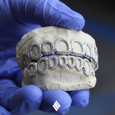 Tyga Open-Face White Gold Diamond Grillz