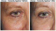 Jeunesse Instantly Ageless 25 Vials (.6mL Each) Total 15mL - CAREPROST