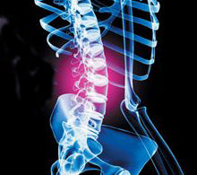 TCM for Back Pain - Using Acupuncture & Chinese Herbs for Back Pain Relief