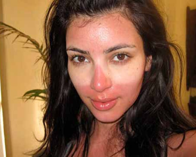 Learning to deal with a sunburn, Kim Kardashian style | My Makeup Brushes