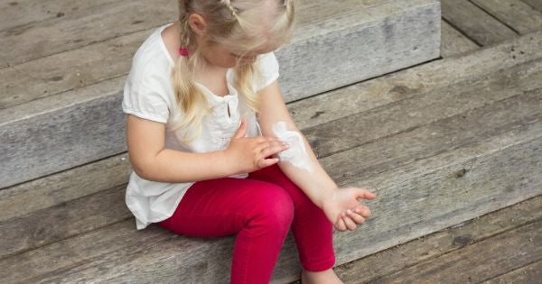 5 Things We Did To Help Relieve Our Child's Eczema