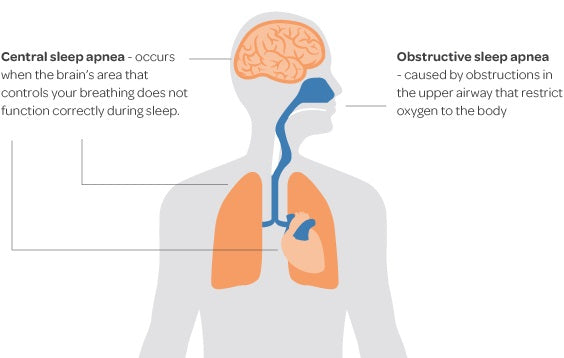 What Is Central Sleep Apnea Disorder?