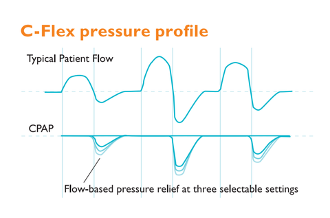 Diagram showing the C-Flex pressure profile as part of Respironics Flex technologies that feature on their CPAP machines