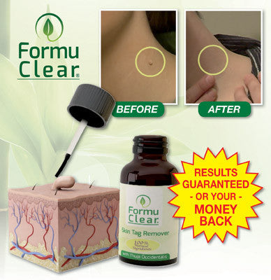 Formu Clear Skin Tag Remover - Easy and Painless!