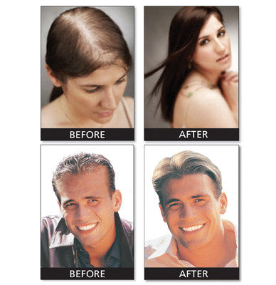 Super Hair Plus - Your solution to thin, lifeless hair.