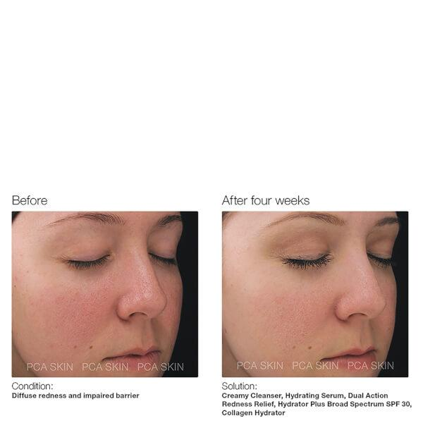 Collagen Hydrator Facial Cream