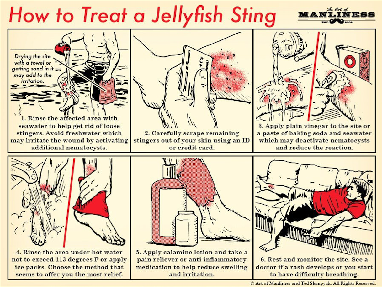 How To Treat A Jellyfish Sting