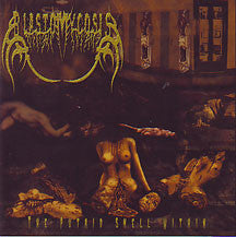 Blastomycosis- The Putrid Smell Within CD on CDN Rec.