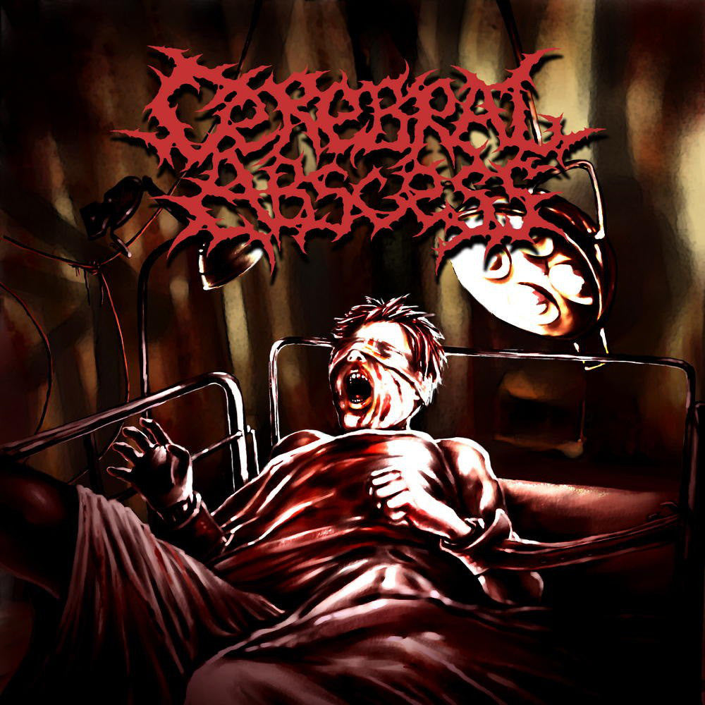 Cerebral Abscess- S/t CD on Putrescence Rec.