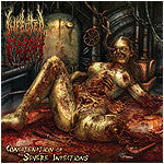 Infected Flesh- Concatenation Of Severe Infections CD on Comatos