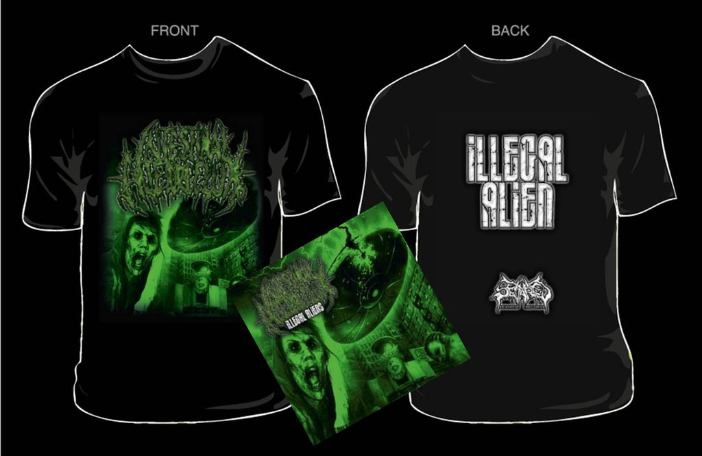 INTESTINAL ALIEN REFLUX- Illegal CD/T-SHIRT PACKAGE LARGE