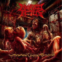 ABORTED FETUS- Goresoaked Clinical Accidents CD on Sevared Rec.