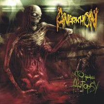 ANARKHON- Into The Autopsy CD on SEVARED RECORDS