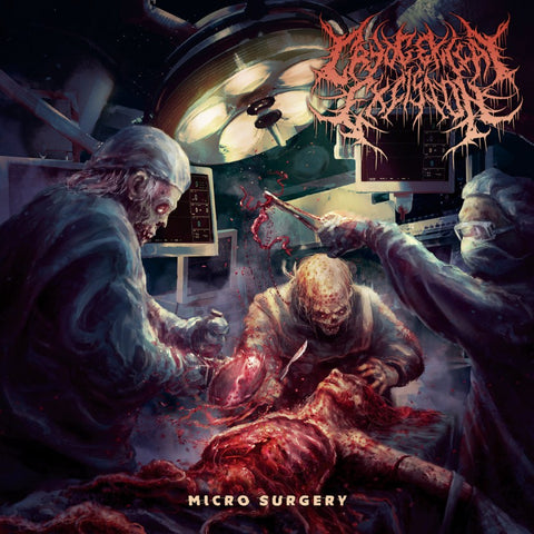 Cryogenical Excision- Micro Surgery CD on Inherited Suffering Rec.