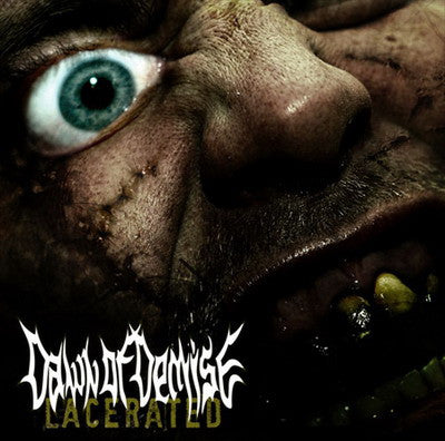 Dawn Of Demise- Lacerated MCD on Deepsend Rec.