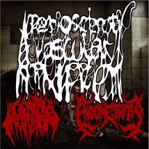 ENDOMETRITIS / GENITAL MUTILATION- Split CD on RTM Rec.