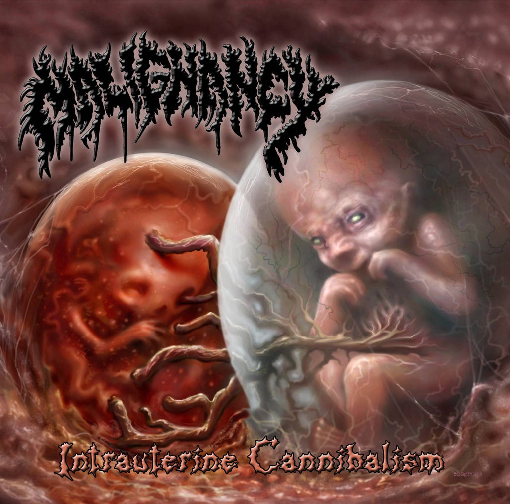 MALIGNANCY- Intrauterine Cannibalism DOUBLE CD on Sevared Rec.