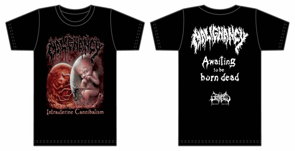 MALIGNANCY- Intrauterine Cannibalism T-SHIRT S-XXL OUT NOW!!!