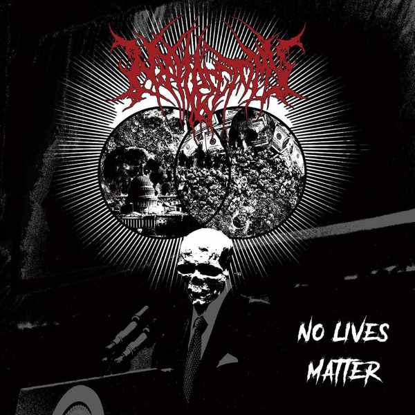 Nephrectomy- No Lives Matter CD on Amputated Vein Rec.
